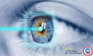Lasik Laser Eye Hospital India